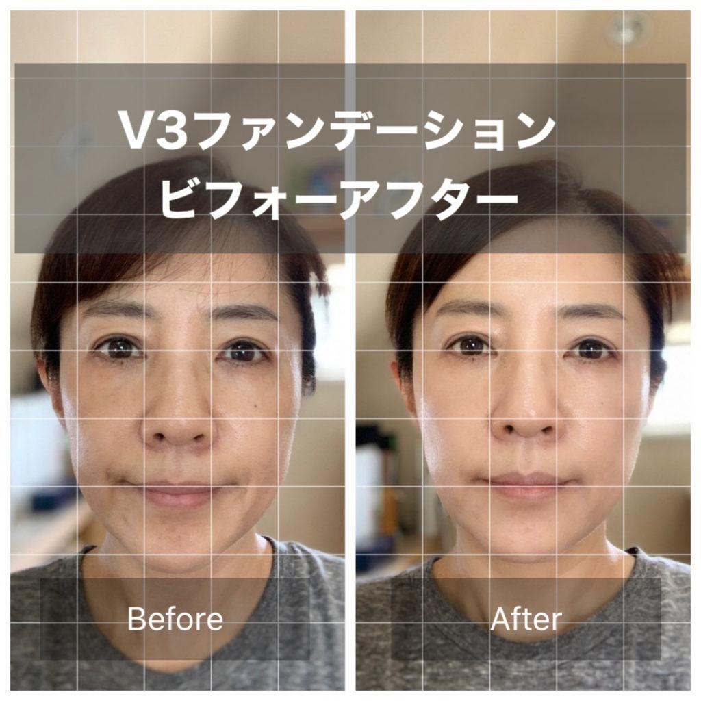 V3ファンデーションを使ってみました。ビフォーアフターで肌の針が激変!艶々に。明るい肌に変身。